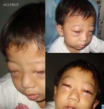 Alergi cukup parah menyebabkan muka Enrico bengkak dan berubah seketika