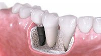 Some Amazing Benefits of Dental Implants