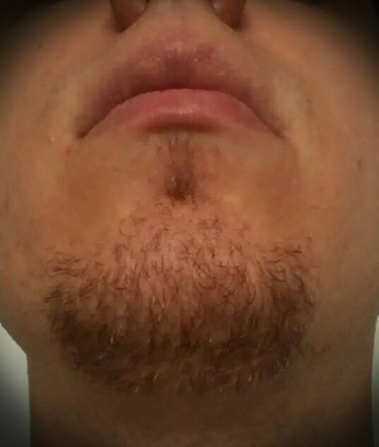 Blogbuch Was Tun Bei Zu Wenig Bzw Fehlendem Bartwuchs