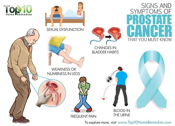 próstata sintomas en español
