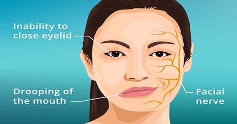Bell's palsy Causes Symptoms and Treatment