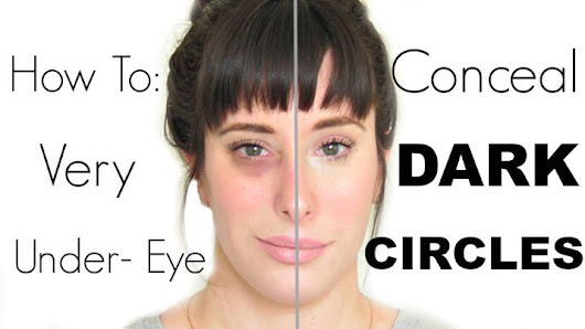 How To: Conceal VERY DARK UNDER-EYE CIRCLES!