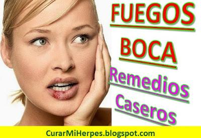 como-curar-fuegos-en-la-boca-remedios-caseros-herpes-labios