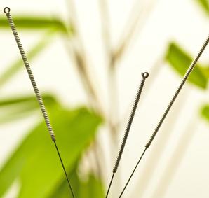 7 Efek Samping Akupuntur yang Mungkin Terjadi