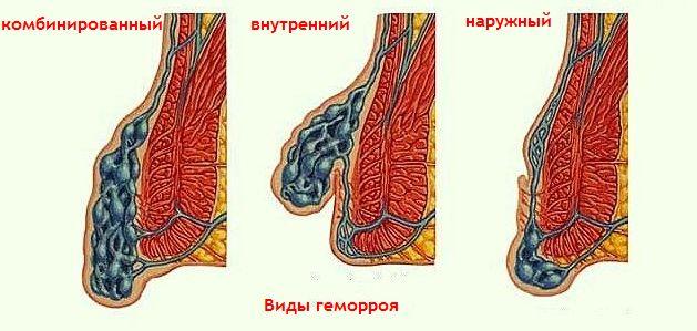 Внутренний геморрой симптомы и схема лечения