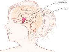 Symptoms, Causes and Treatment of Craniopharyngioma