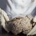 El TDAH es un trastorno físico relacionado con el tamaño del cerebro, no sólo el mal comportamiento, dicen los científicos