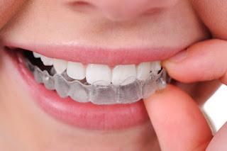 Tipos de tratamientos odontológicos