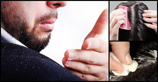 Simple Home Remedies That Can Help Get Rid Of Dandruff