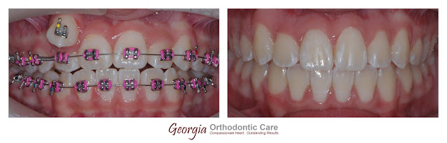 Incomplete transposed teeth, ectopic eruption, non extraction treatment, Orthodontics, orthodontists, Clear, Invisible, Braces, Invisalign, underbite,class III, face mask, non-surgery, non-extraction, crossbite, overbite, class II, crooked, spaced, crowding, teeth, severe, jaw alignment, cosmetics, implants, children, dentists, dentistry, friendly, adults, children, family, Lawrenceville, Norcross, Buford, Hamilton Mill, Dacula, Auburn, Sugar Hill, Sugar Loaf, Doraville, Chamblee, Stone Mountain, Decatur, Collins Hill, Snellville, Suwanee, Grayson, Lilburn, Duluth, Cumming, Alpharetta, Marietta, Dekalb, Gwinnett, County, Atlanta, North Georgia, GA, Georgia, 30043, 30093, affordable, Vietnamese, Spanish, weekend, Saturday, appointments, Dr. Quang Nguyen, Georgia Orthodontic Care, Nguyen Orthodontics.
