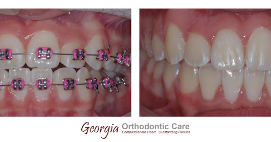 Orthodontic Treatment to Correct an Incomplete Transposition / Ectopic Eruption Case, Georgia Orthodontic Care, Lawrenceville & Norcross, GA