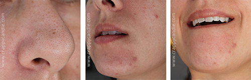 Curology Selfies - The Acne Experiment