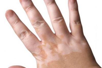 Cara Mengobati Vitiligo dengan buah Pepaya