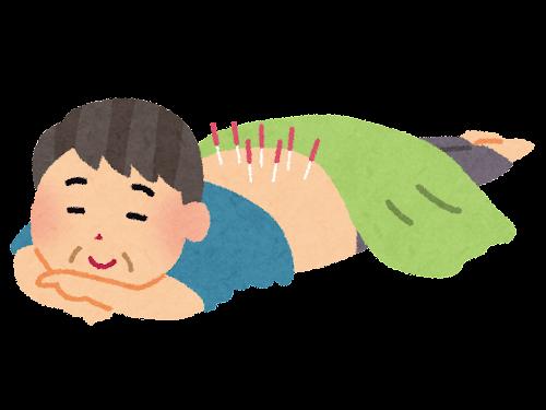 鍼治療のイラスト