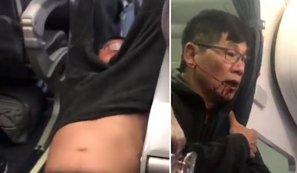 Penumpang United Airlines yang Diseret, Alami Gegar Otak dan Patah Hidung