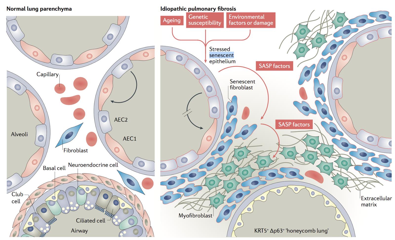 リウマチ膠原病勉強會: 特発性肺線維癥(IPF):nature review