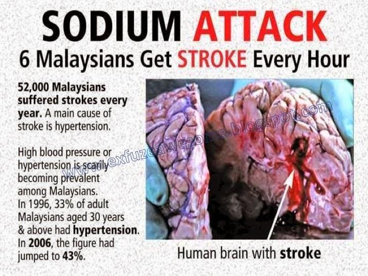 risiko strok untuk rakyat malaysia
