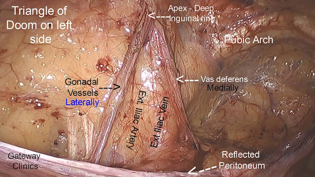 Laparoscopic Inguinal Hernia Repair- Surgical Anatomy