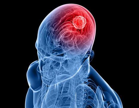 What Does A Brain Tumor Headache Feel Like