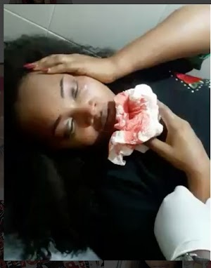 Nollywood Actress Mercy Aigbe at last shares  video of her bruised face & coughing out blood after she was brutalized by her estranged husband, Lanre, in April
