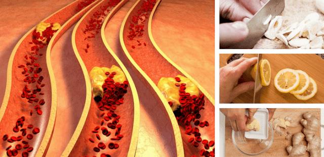 remedios para las arterias obstruidas