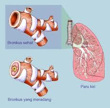 Cara Mengatasi Bronkitis yang Kronis