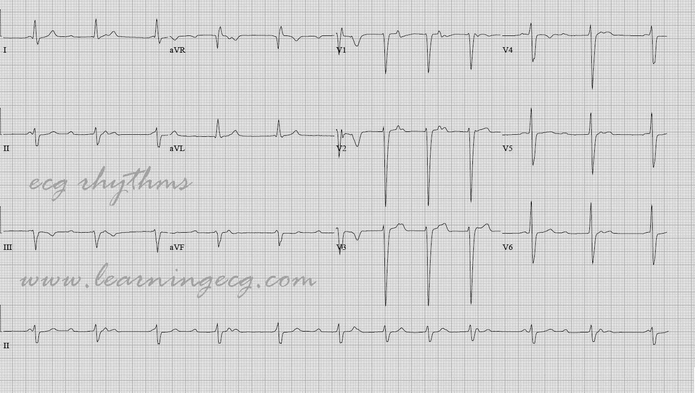 ecg rhythms  is this complete heart block