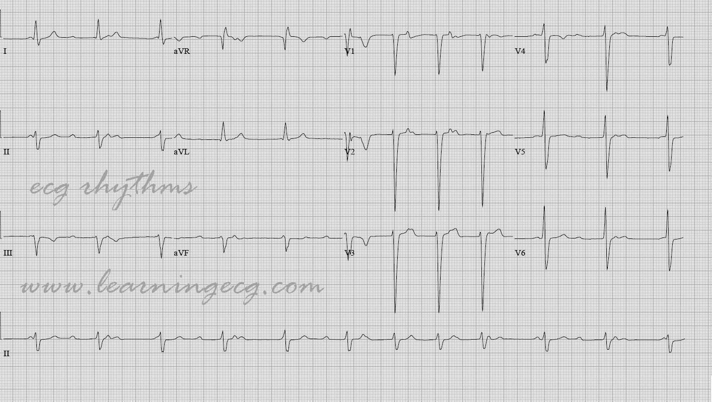 ECG Rhythms: Is this Complete Heart Block?