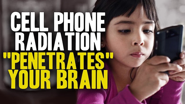 How Cellphones Can Cause Brain Tumors