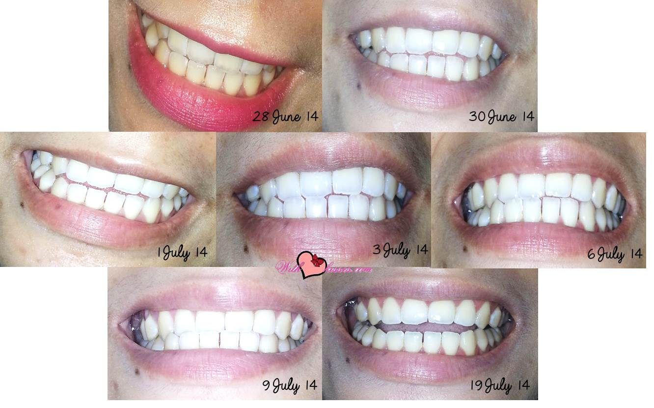 Natural Plus Teeth Whitening Reviews