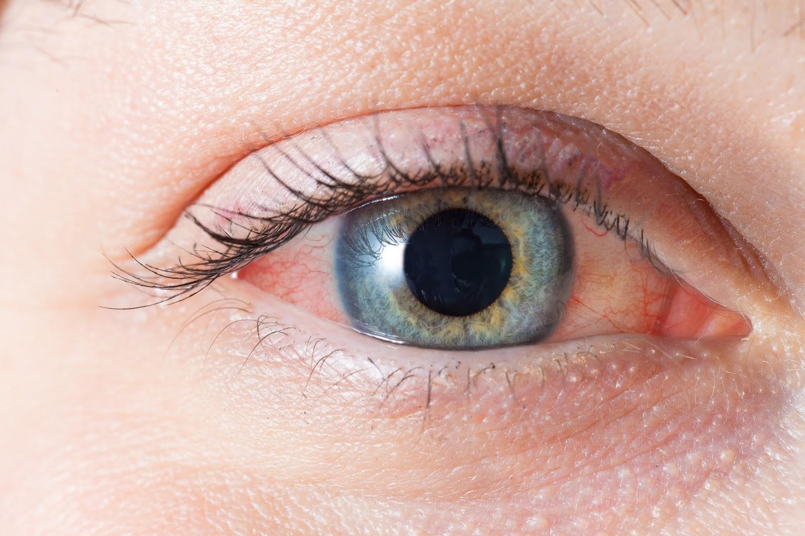 6 Fixes For Bloodshot Eyes (Without Eye Drops)