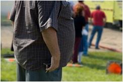 se puede tratar la obesidad grave con el método apollo
