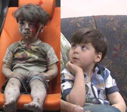 Syrian boy whose bloodied ambulance picture broke hearts looks much happier now (photos)