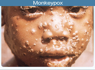 monkey pox and what you should know anout it
