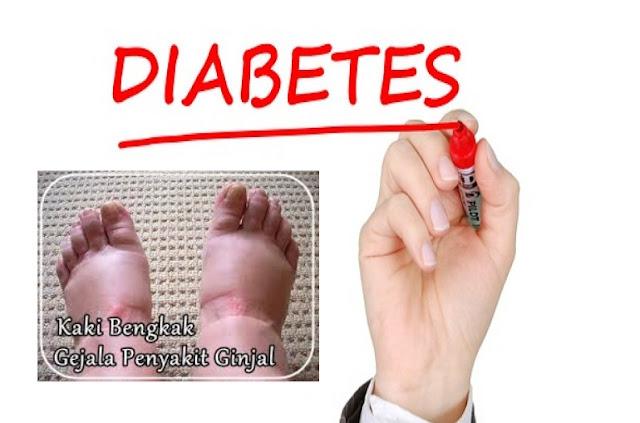 Obat Diabetes Yang Aman Untuk Komplikasi Ginjal
