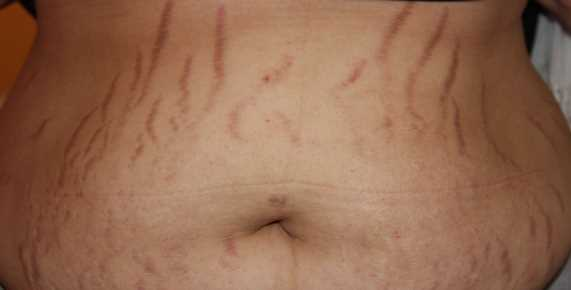 What Are the Home Remedies for Stretch Marks?