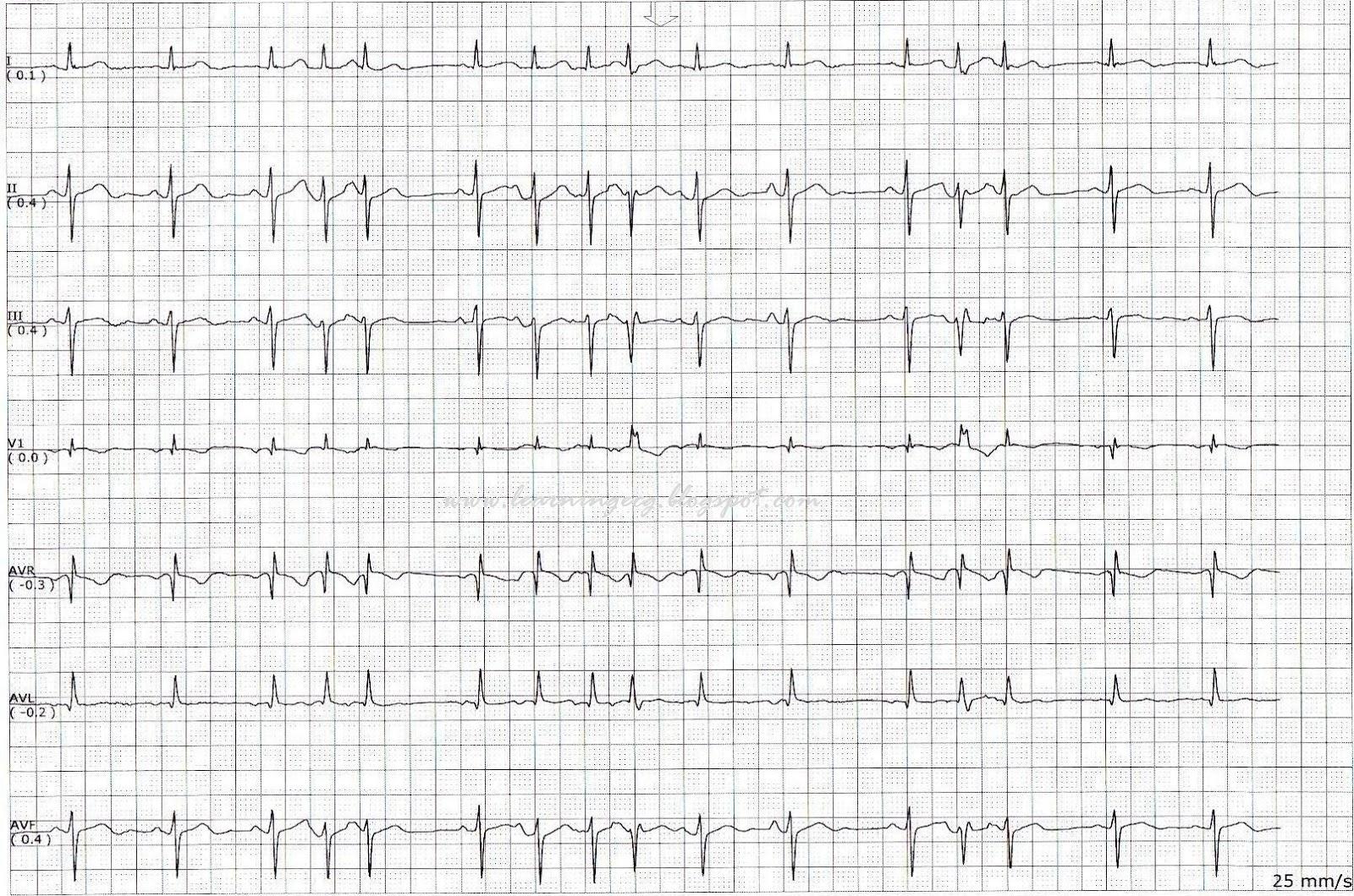 ECG Rhythms: Multifocal Atrial Rhythm