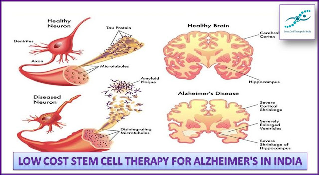 Affordable and Low Cost Benefits Stem Cell Therapy For Alzheimer's in India