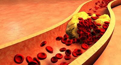 Consejos para Bajar el Colesterol