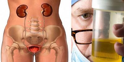 Remedio Casero para las infecciones urinarias