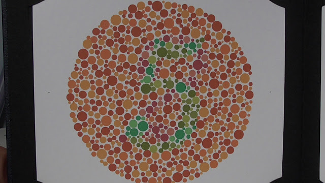 Symptoms, Causes and Treatment of Color Blindness