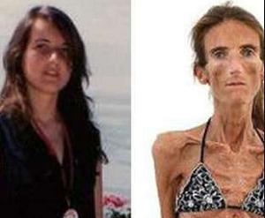 """Lakukan Diet Ketat Karena Takut Jomblo, Wanita Ini Malah Derita """"Anorexia"""""""