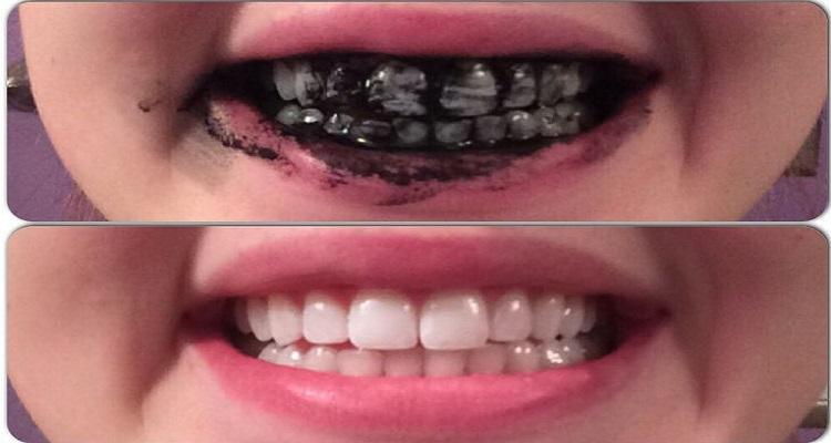 منتج مبيض جيد للأسنان و يقضي على سموم الجسم