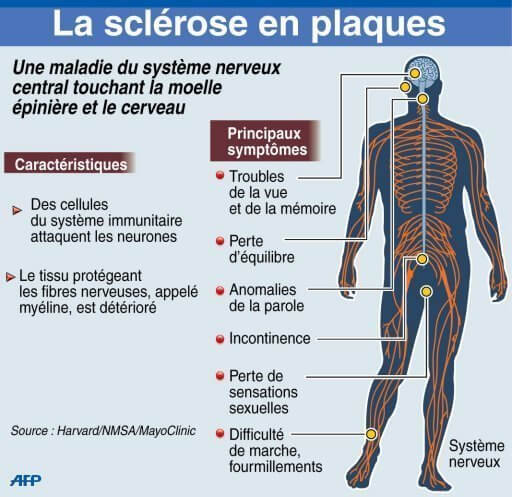 Cours : Multiple Sclerosis, Sclérose en PlaQues