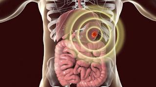 Καρκίνος του στομάχου: Ποιοι κινδυνεύουν περισσότερο