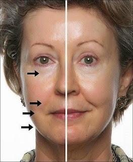 косметические маски,массаж лица,маски для лица,лифтинг лица, Facials,facial massage,facial mask,face lift,kosmetische Maske,Gesichtsmassage,Maske für das Gesicht,Face-Lifting,