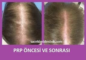 prp saç tedavisi yaptıranlar 20