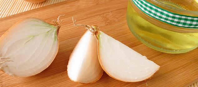 cebolla para bajar el ácido úrico