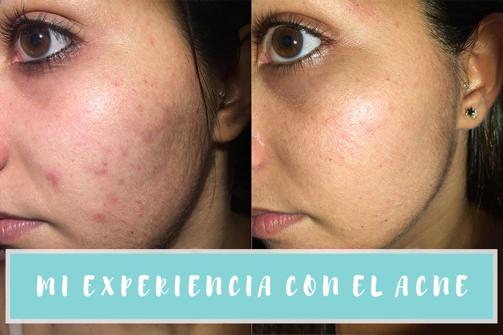 ems salva acne