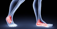 Uric acid ankle pain image